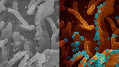 Photo of لأول مرة… تصوير حقيقي لعملية تدمير فيروس كورونا لخلية بشرية واحتضارها شيئا فشيئا