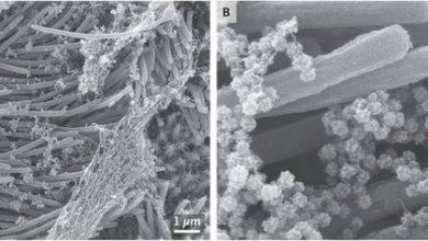 Photo of صور مخيفة لخلايا مجرى الهواء وهي تعج بفيروس كورونا