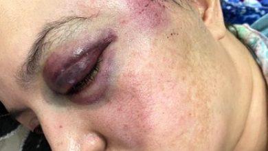 Photo of استنكار شديد للاعتداء المغربي على المناضلات الصحراويات