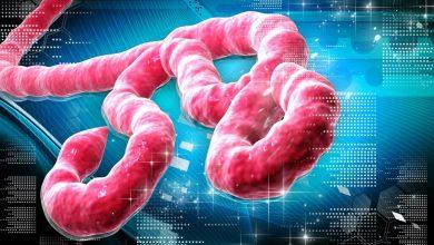 Photo of تفشي وباء إيبولا القاتل في غينيا.. وتخوف الدول المجاورة من العدوى