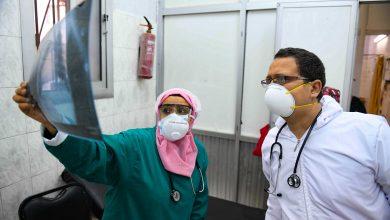 Photo of توقيف الإجازات الصيفية لغالبية الأطقم الطبيةللتكفل بإصابات كوفيد 19